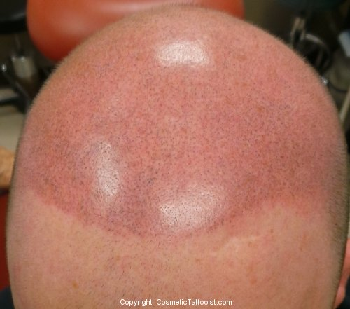 Scalp Tattooing Immediately After First Treatment