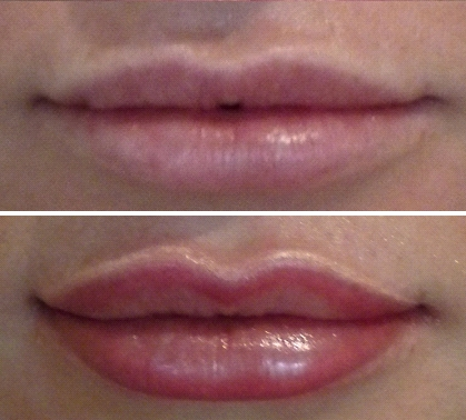 Before & After Lip Volumising Tattooing