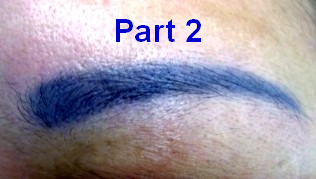 Why do Cosmetic Tattoos Change Colour Part 2
