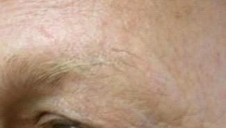 Clients With Unexplained Loss of Outer Eyebrow Hair