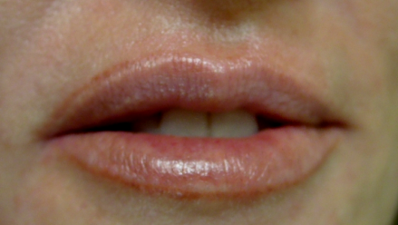 Asymmetrical Lip-line